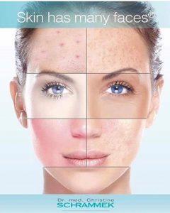 Tratamiento Mela White para hiperpigmentaciones adquiridas