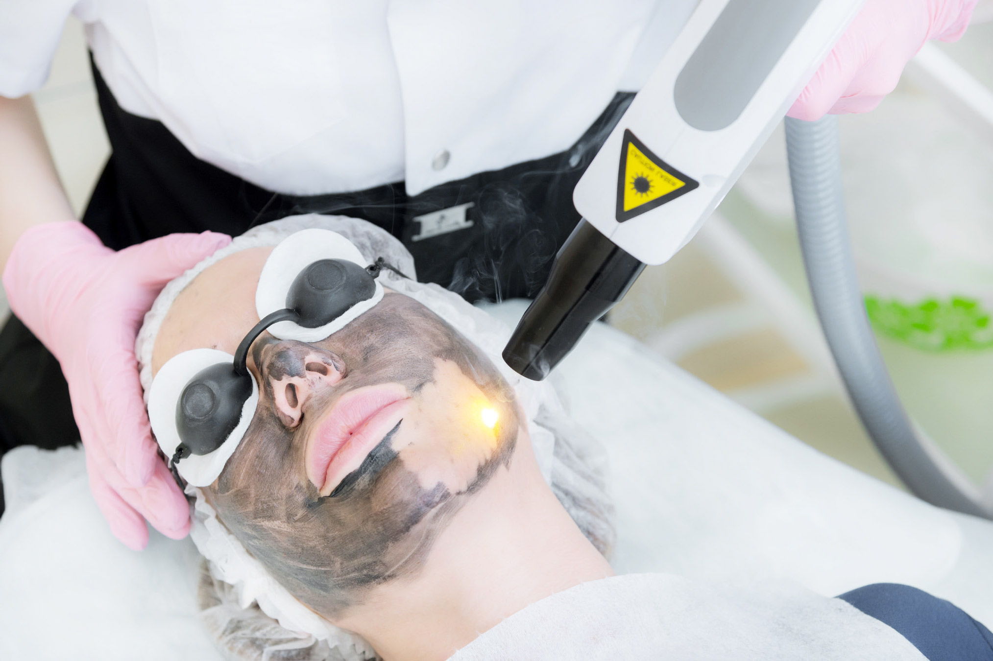 Tratamiento Black Peeling