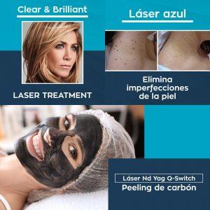 Tratamientos faciales con láser